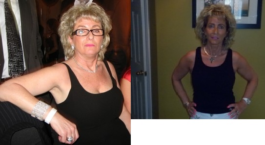Joanne-Before-After